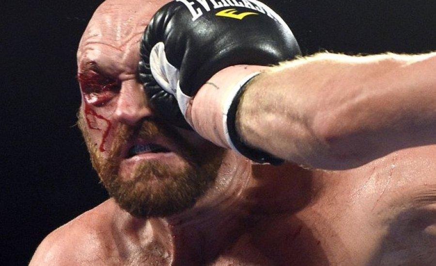 Tyson Fury apja nagyon kiakadt fia produkcióján