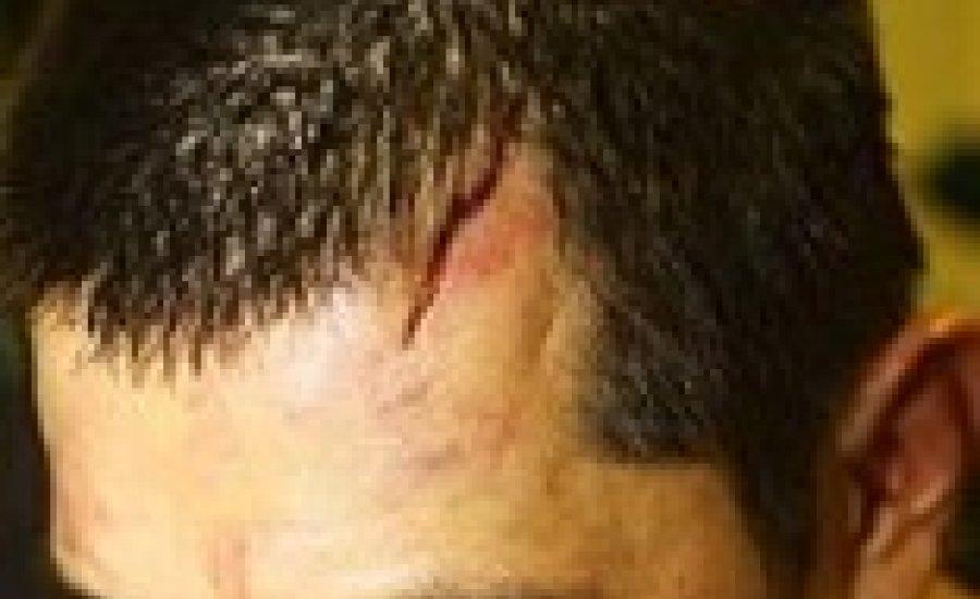 A 30 öltéssel összevarrt Marco Antonio Barrera folytatja