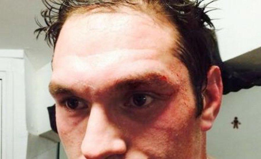 Tyson Fury megsérült, de bokszol